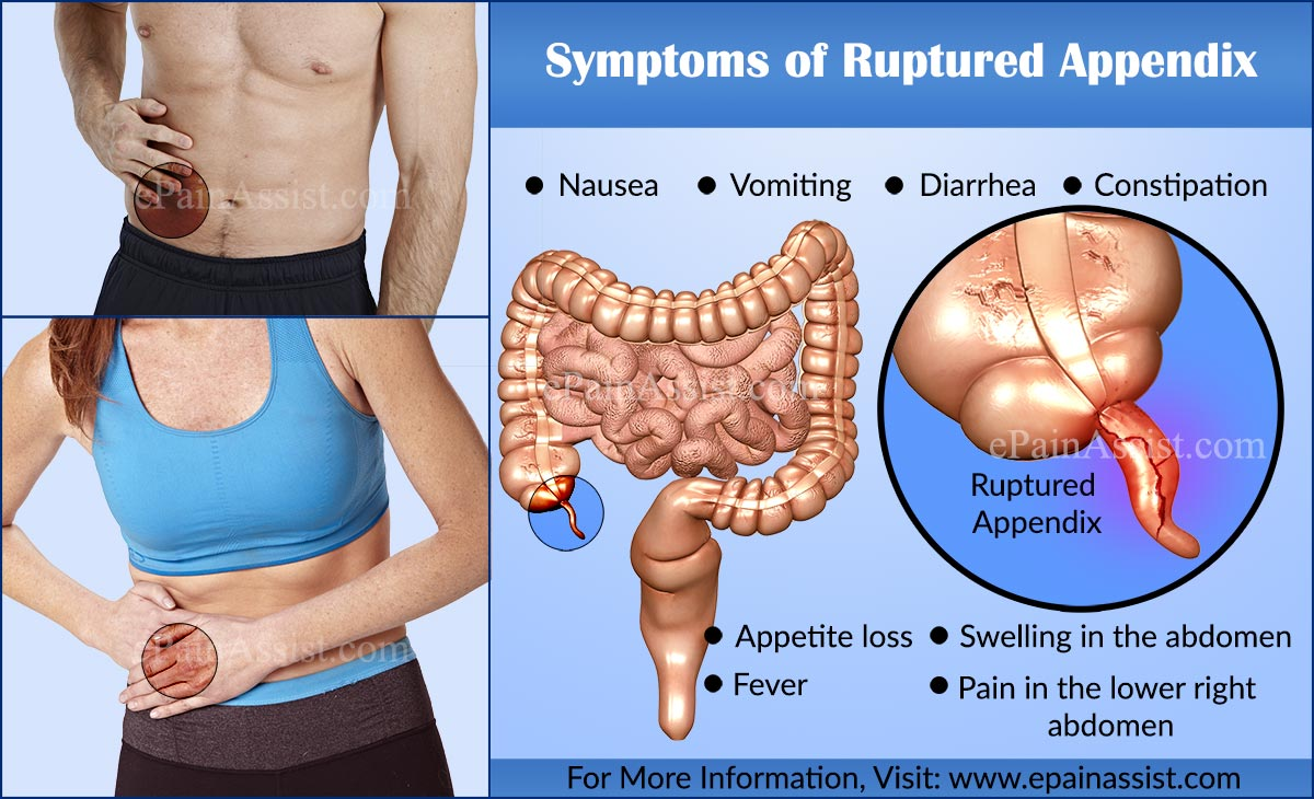 ruptured appendix|causes|symptoms|treatment|signs|complications, Cephalic Vein