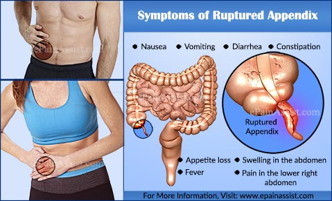 Symptoms of Ruptured Appendix