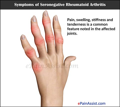 Symptoms of Seronegative Rheumatoid Arthritis