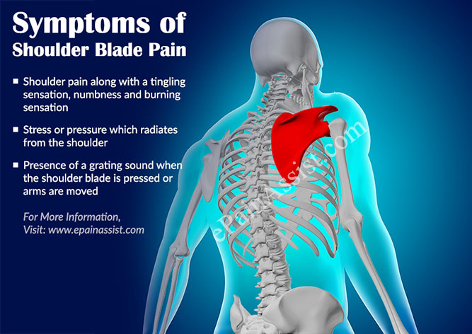 Shoulder Blade Pain|Symptoms|Causes|Types|Treatment|Exercise