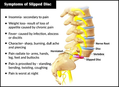 Symptoms and Signs of Slipped Disc