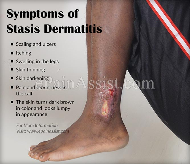 Symptoms of Stasis Dermatitis