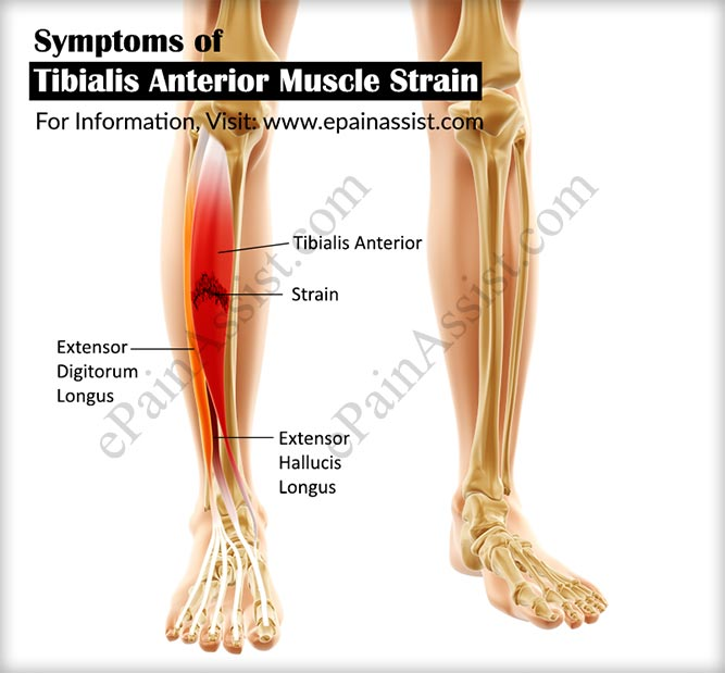 Tibialis Anterior Muscle Straincausessymptomstreatment