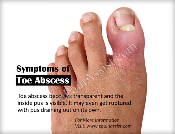 Signs and Symptoms of Toe Abscess