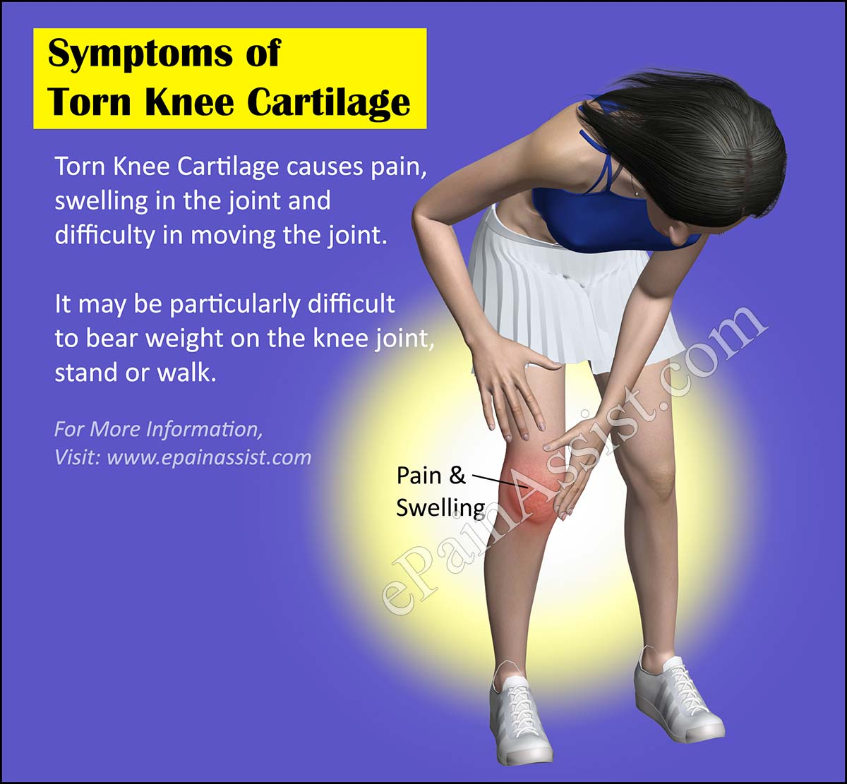 Symptoms of Torn Knee Cartilage