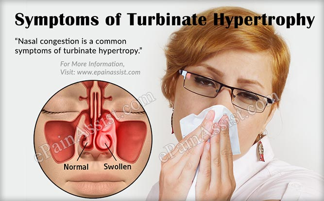 Signs and Symptoms of Turbinate Hypertrophy
