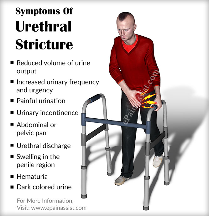 Symptoms Of Urethral Stricture