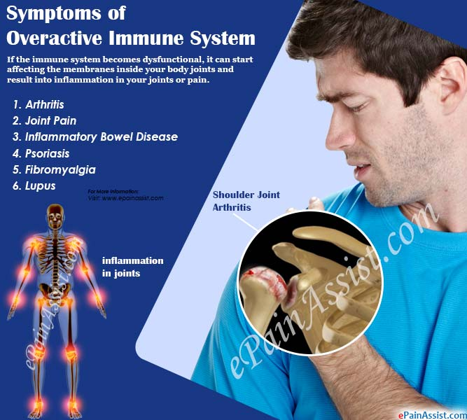 Symptoms of Overactive Immune System