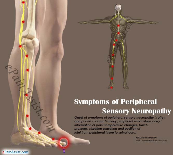 Symptoms of Peripheral Sensory Neuropathy