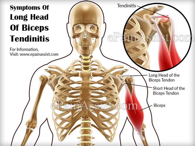 Long Head Of Biceps Tendinitis: Treatment, Exercises, Causes, Symptoms
