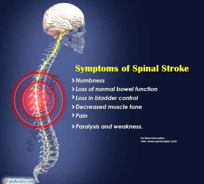 Symptoms of Spinal Stroke