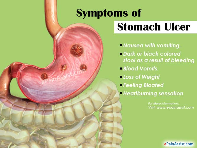 Stomach Ulcer Or Peptic Ulcer Disease Treatment Home