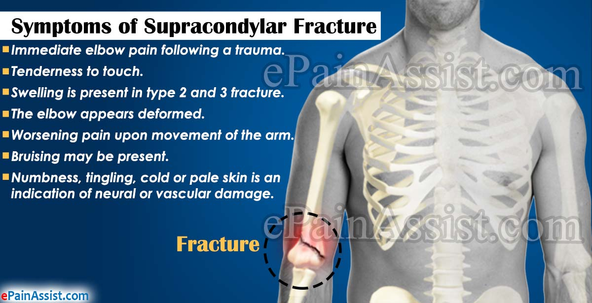 Symptoms of Supracondylar Fracture
