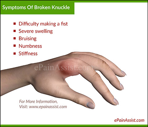 Broken Knuckle Or Fractured Knuckle Treatment And Symptoms
