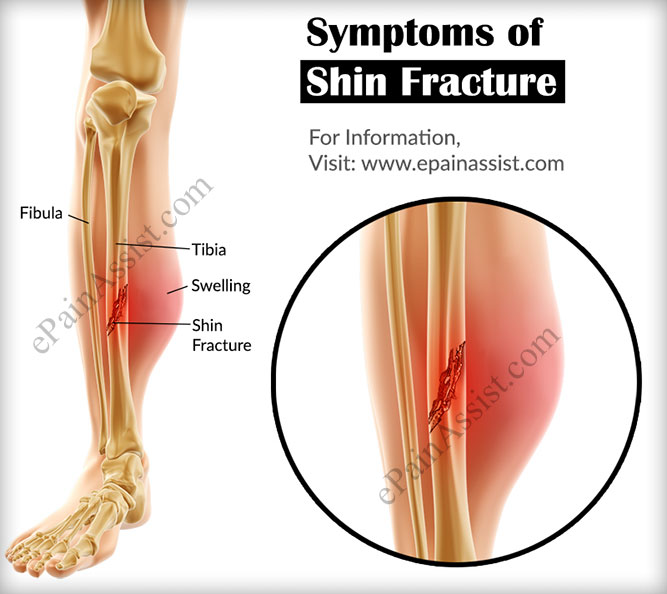 Signs and Symptoms of Shin Fracture or Fracture of Tibia