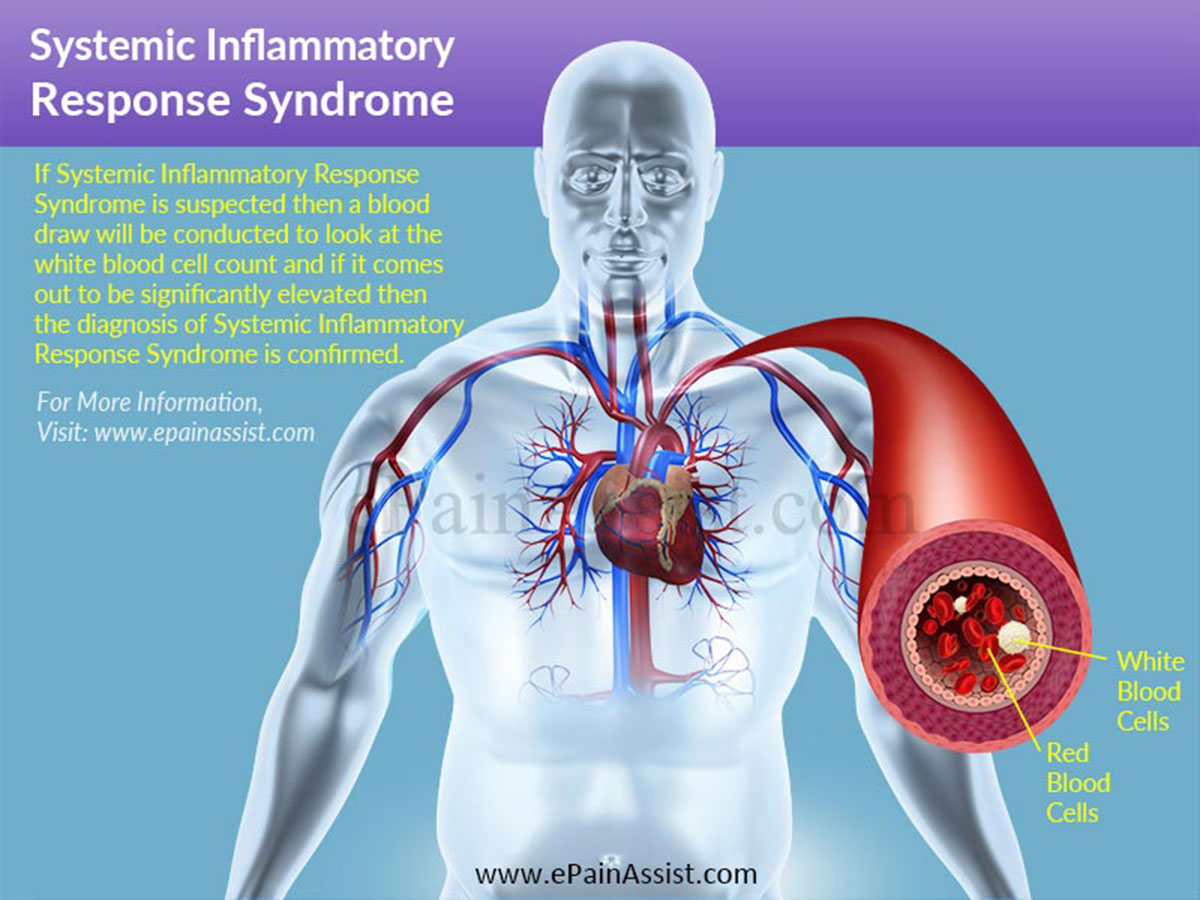 Systemic Inflammatory Response Syndrome|Causes|Symptoms|Treatment