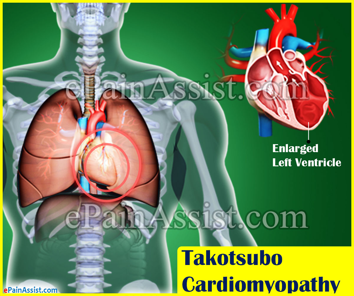 Takotsubo Cardiomyopathy or Broken Heart Syndrome