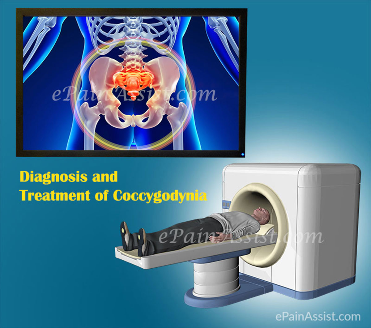 Tests to Diagnose Coccygodynia or Coccygeal Pain
