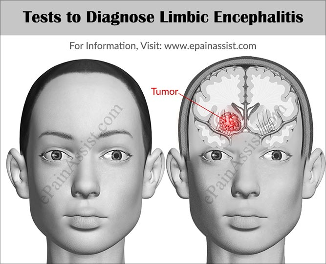 Tests to Diagnose Limbic Encephalitis