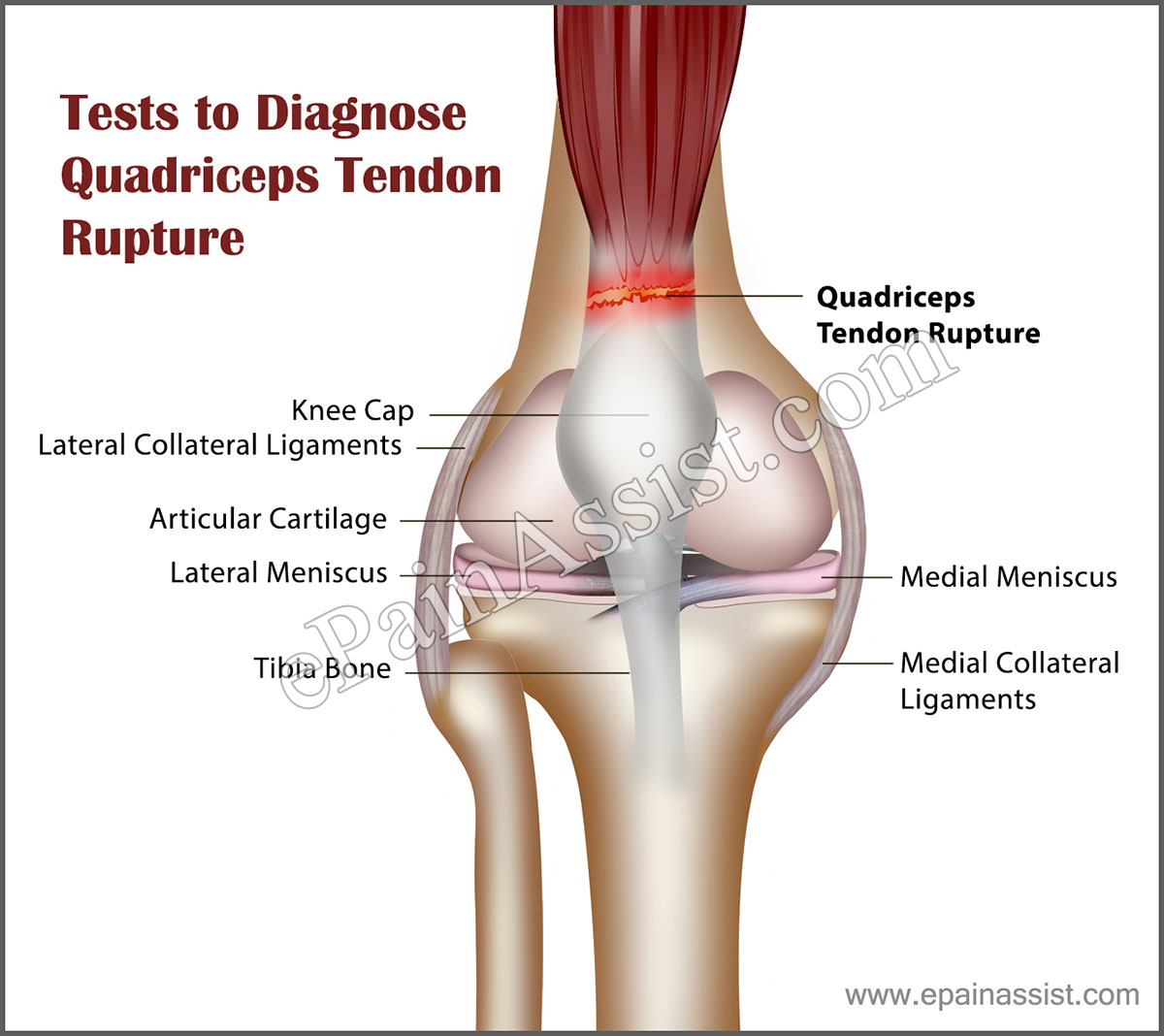 Tests to Diagnose Quadriceps Tendon Rupture (QTR)