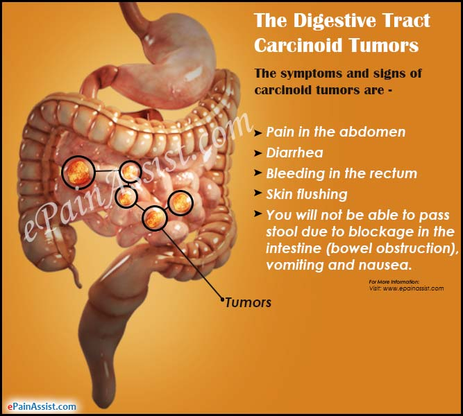 The Digestive Tract Carcinoid Tumors