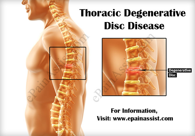 Thoracic Degenerative Disc Diseasecausessymptomstreatment