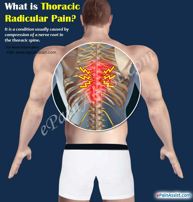 What is Thoracic Radicular Pain?