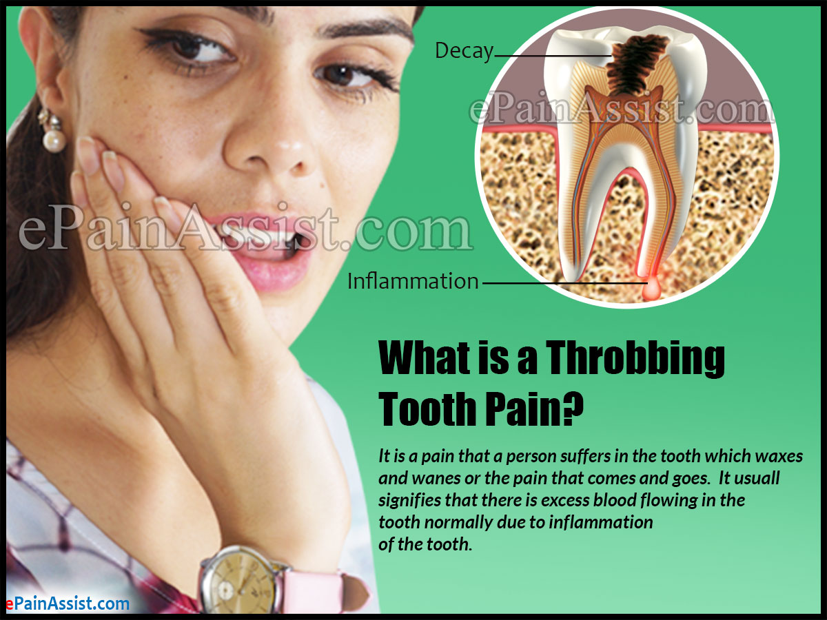 What is a Throbbing Tooth Pain?