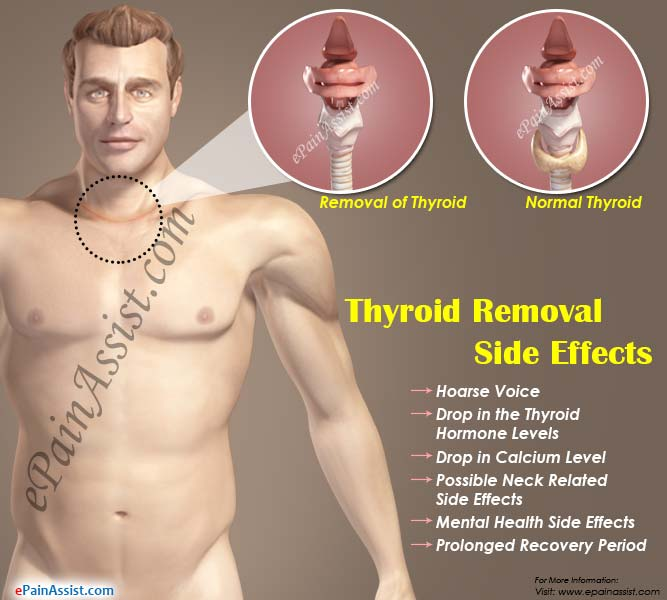 Thyroid Removal Side Effects What Happens When Thyroid Is Removed