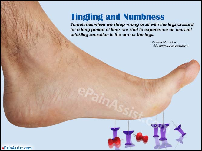What Causes Tingling And Numbness How To Get Rid Of It