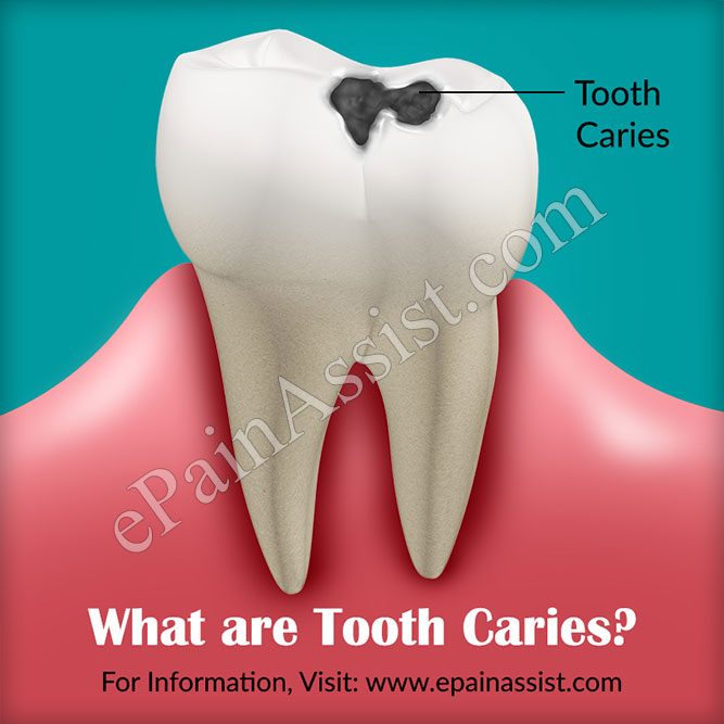What are Tooth Caries?
