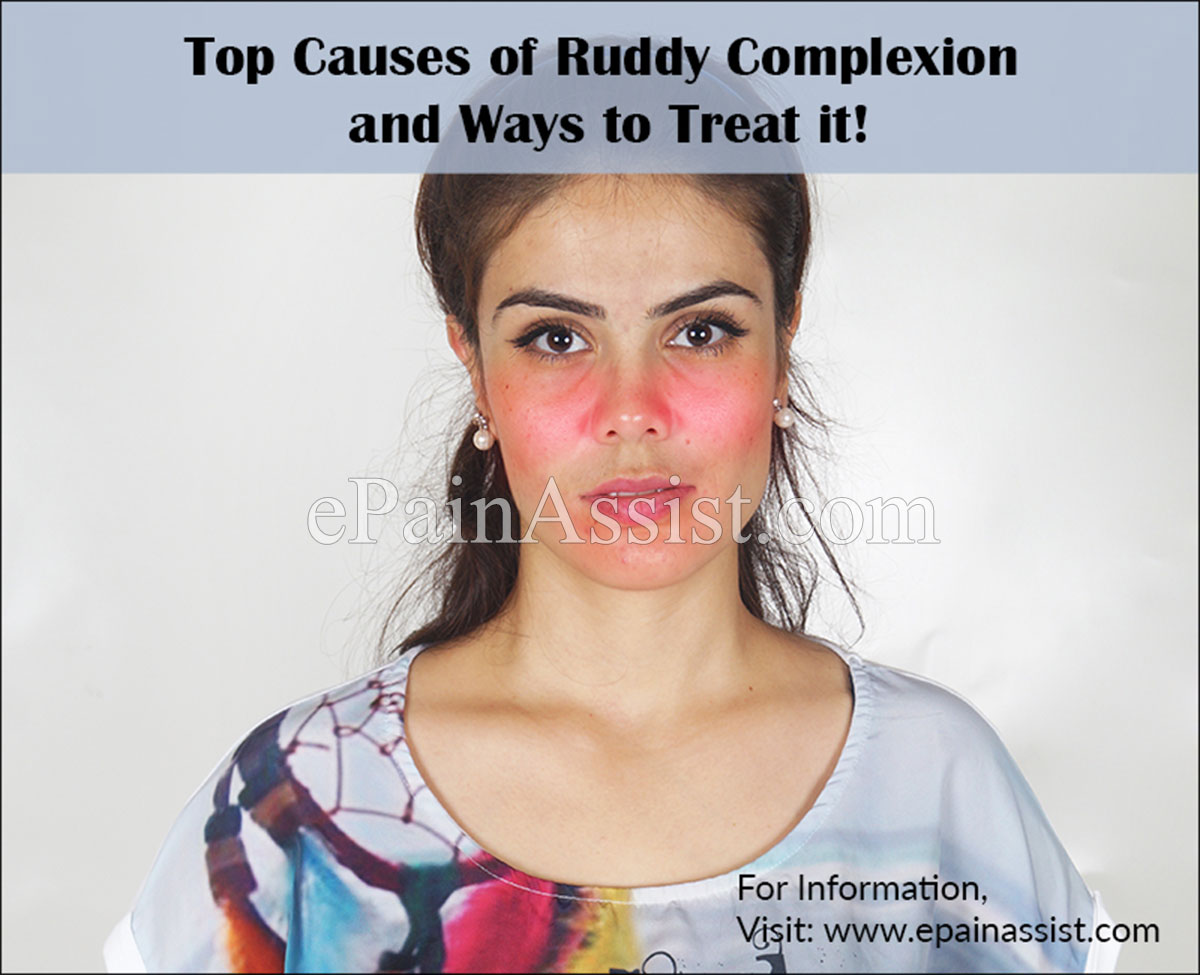 Ruddy complexion hair color