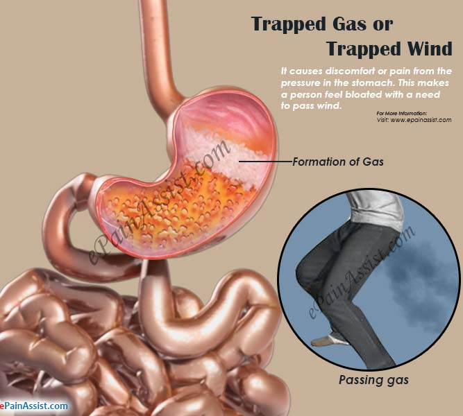 What Causes Trapped Gas Pain or Trapped Wind & Remedies to
