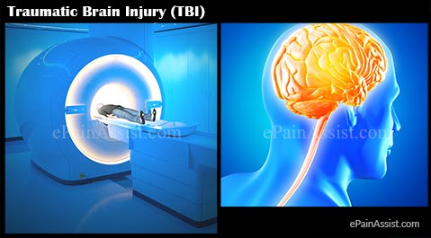 Traumatic Brain Injury (TBI) or Intracranial Injury