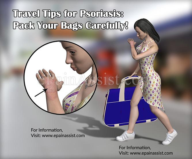 Travel Tips for Psoriasis: Pack Your Bags Carefully!