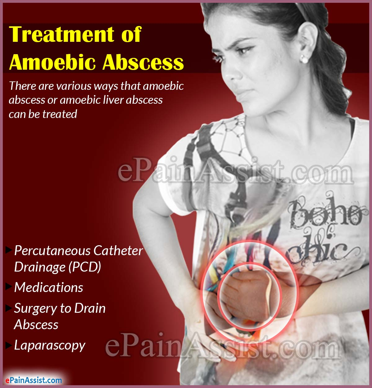 Treatment of Amoebic Abscess or Amoebic Liver Abscess