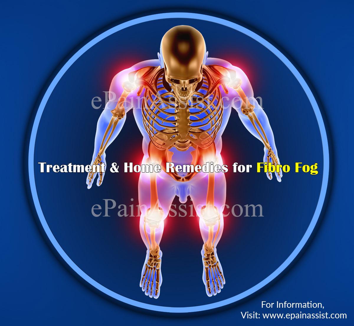Treatment & Home Remedies for Fibro Fog
