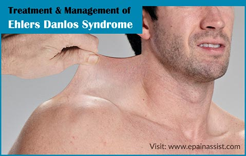 Treatment & Management of Ehlers Danlos Syndrome or EDS