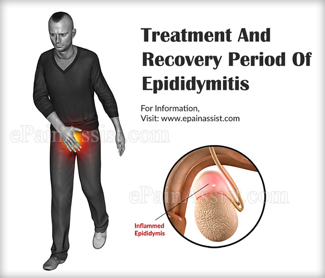 epididymitis: treatment, recovery, causes, symptoms, coping tips, Human Body