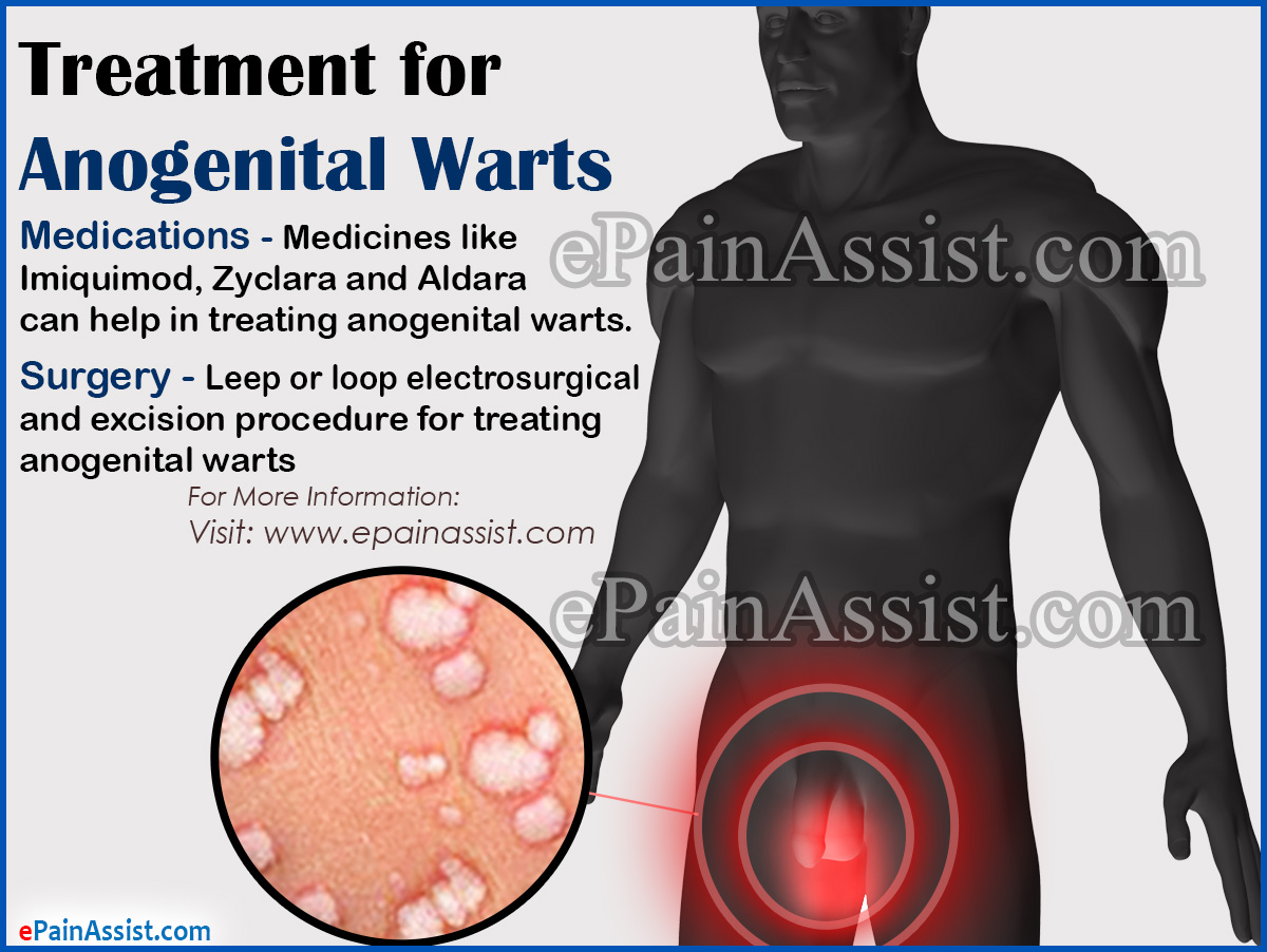 Treatment for Anogenital Warts