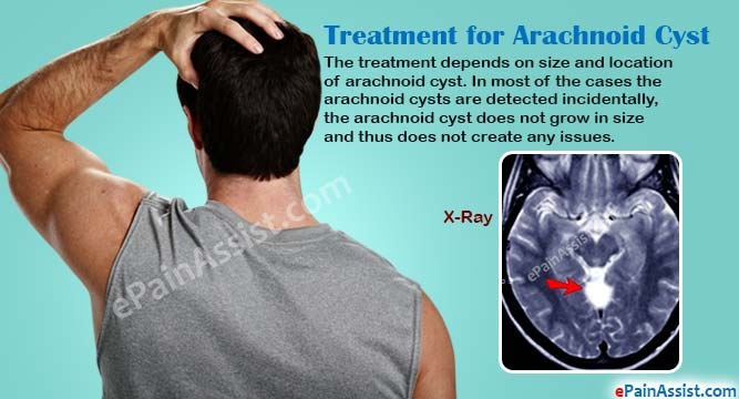 Treatment for Arachnoid Cyst