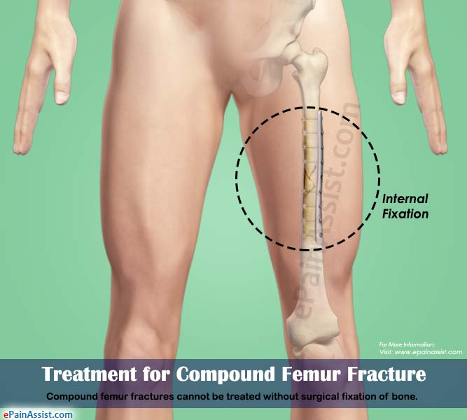 Treatment for Compound Femur Fracture