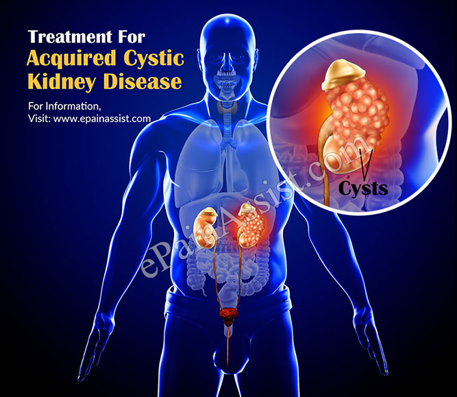 Treatment for Acquired Cystic Kidney Disease (ACKD)
