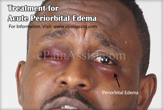 Treatment for Acute Periorbital Edema