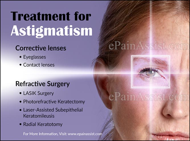 Treatment for Astigmatism