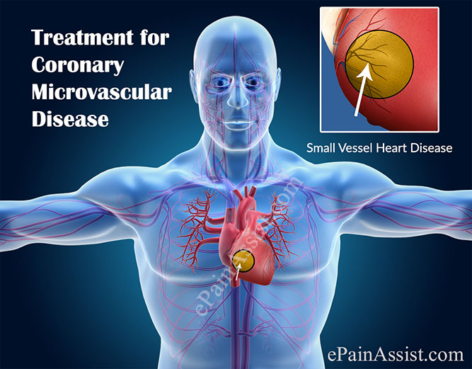 Treatment for Coronary Microvascular Disease or Small Vessel Heart Disease