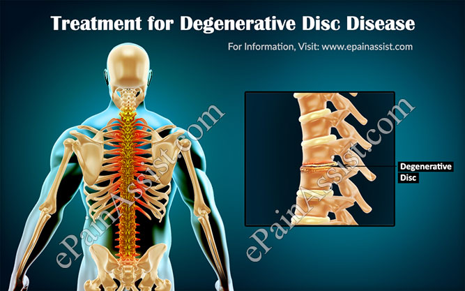 Treatment for Degenerative Disc Disease or DDD