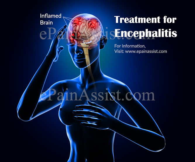 Treatment for Encephalitis