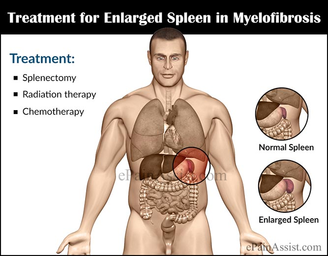 Treatment for Enlarged Spleen in Myelofibrosis