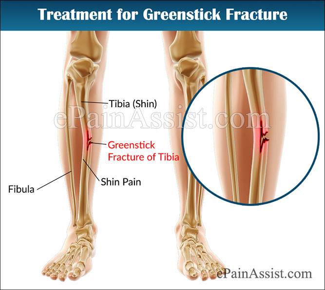 what is greenstick fracture & how is it treated?, Human Body
